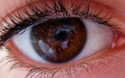 Глаукома: лечение народными средствами и Глаукома: лечение ...